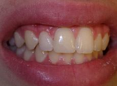 A persons chipped tooth is now fixed after having cosmetic bonding
