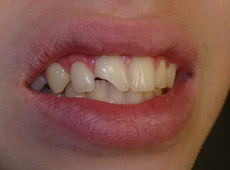 a chip in someones front tooth before having cosmetic bonding