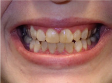 A persons teeth before getting veneers
